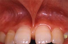 上唇小帯の異常 H23.04